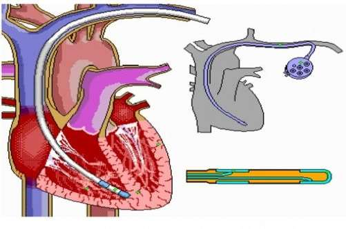 design of interventional biomedical devices Active device means a medical device that depends for its operation on a   interpret and treat a medical condition without human intervention  10 a  medical device shall be designed and manufactured to be safe, and to.