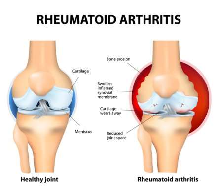 Image result for rheumatoid arthritis
