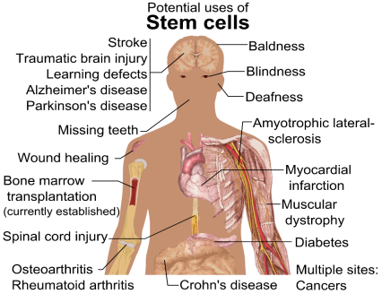 https://upload.wikimedia.org/wikipedia/commons/0/09/Stem_cell_treatments.png