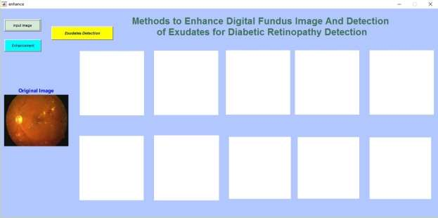 Automated Diabetic Retinopathy Detection System