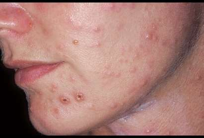 http://images.emedicinehealth.com/images/image_collection/skin/varicella-zoster-virus-nfection.jpg