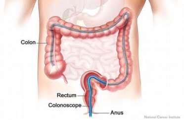http://news.legalexaminer.com/uploadedimages/InjuryBoardcom_Content/Blogs/News_Blog/News/colonoscopy%20procedure%20color%20picture500.jpg