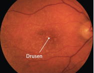 Image result for dry amd images